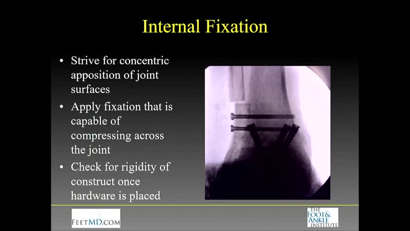 5 Tips in 5 Minutes for a Successful Ankle Fusion Troy S Watson MD OSET 2018 Video Orthobullets