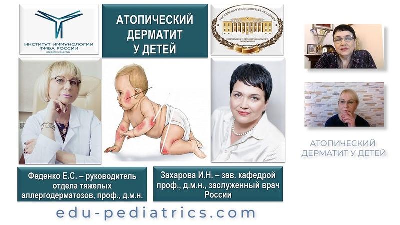 27 02 2021 20 00 Атопический дерматит у детей