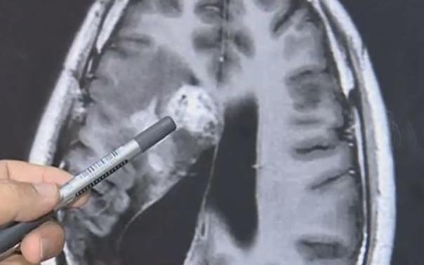 Мужчина из Китая на протяжении 15 лет страдал от различных недугов из-за ленточного червя, который жил в его мозге Ван Лэй впервые почувствовал недомогание в 2007 году: левая сторона его тела