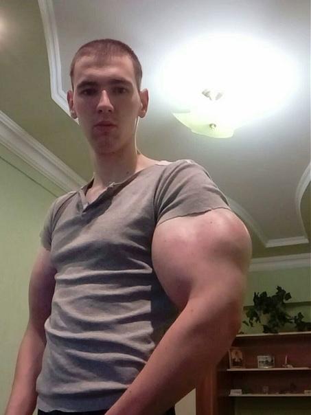 Кирилл Терешин удалил свои известные бицепсы. Сейчас лежит в больнице.